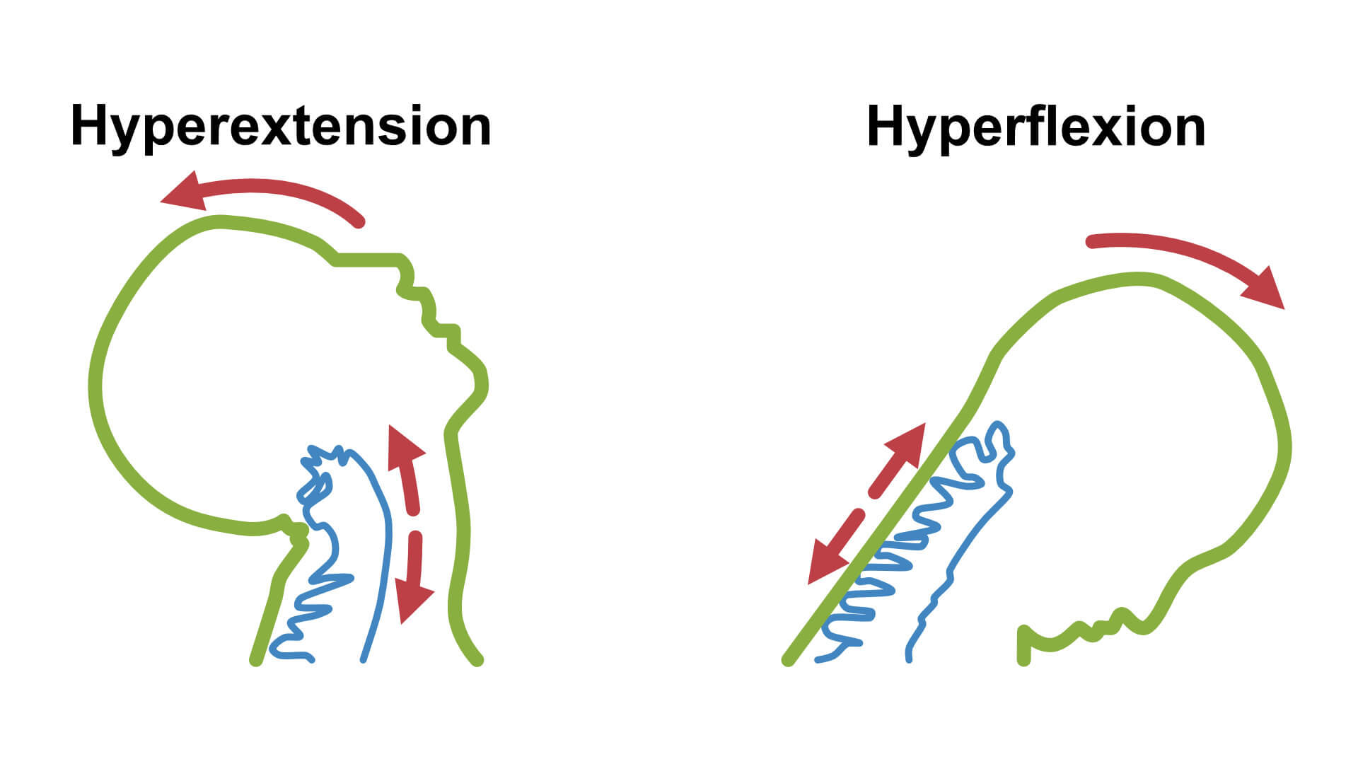 Whiplash hyper extension and hyperflexion